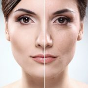 FFL Blog skin wrinkles