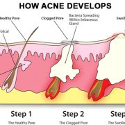 how acne develops